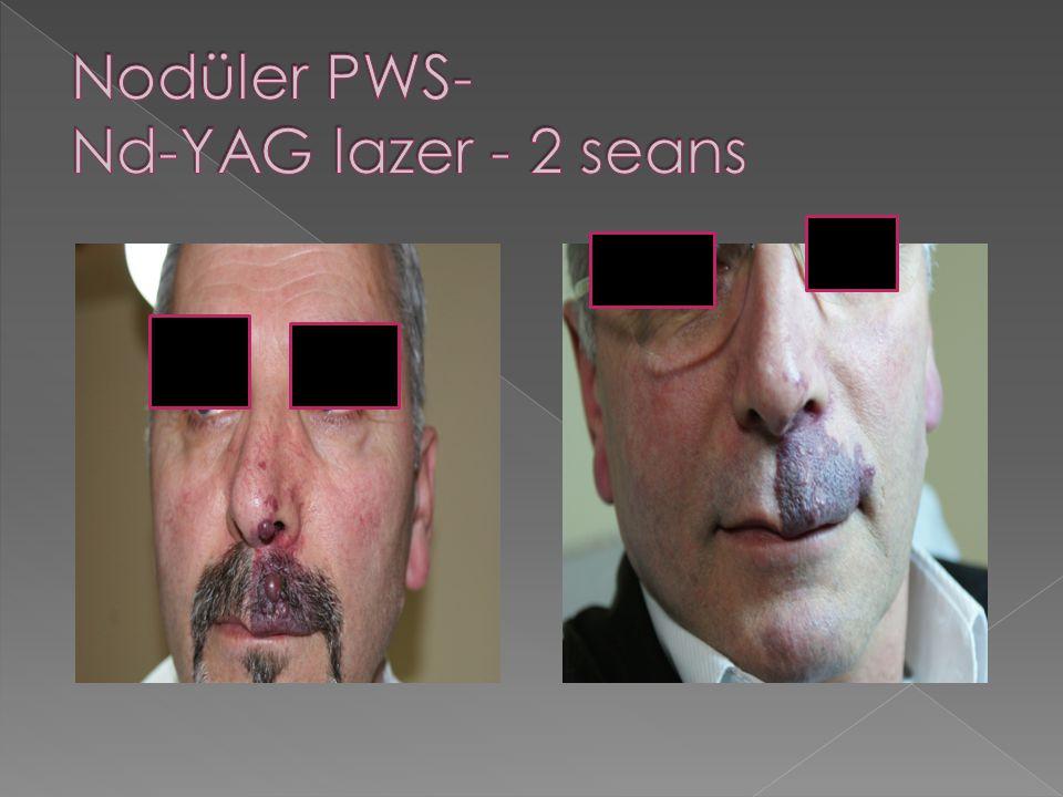 Nodüler PWS- Nd-YAG lazer - 2 seans