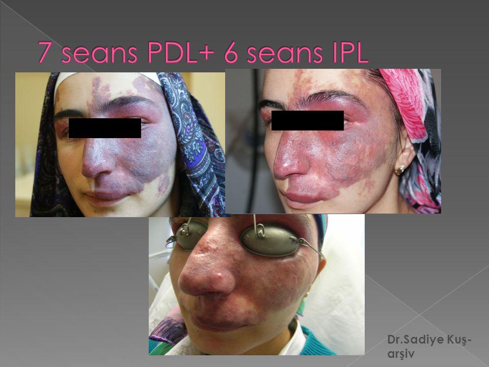 7 seans PDL+ 6 seans IPL Dr.Sadiye Kuş-arşiv