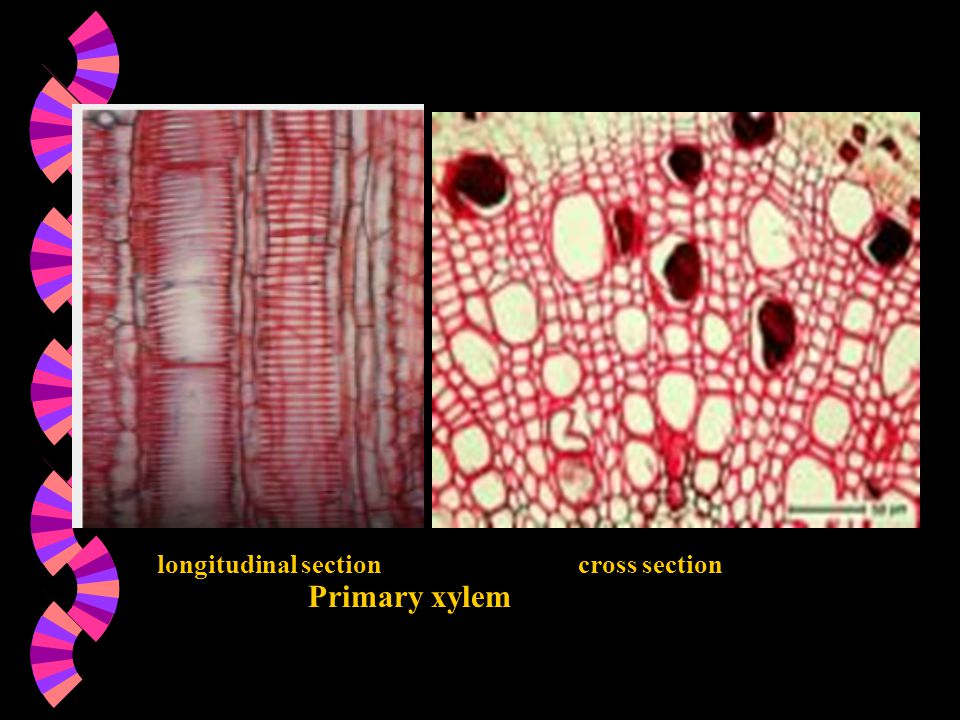longitudinal section cross section Primary xylem