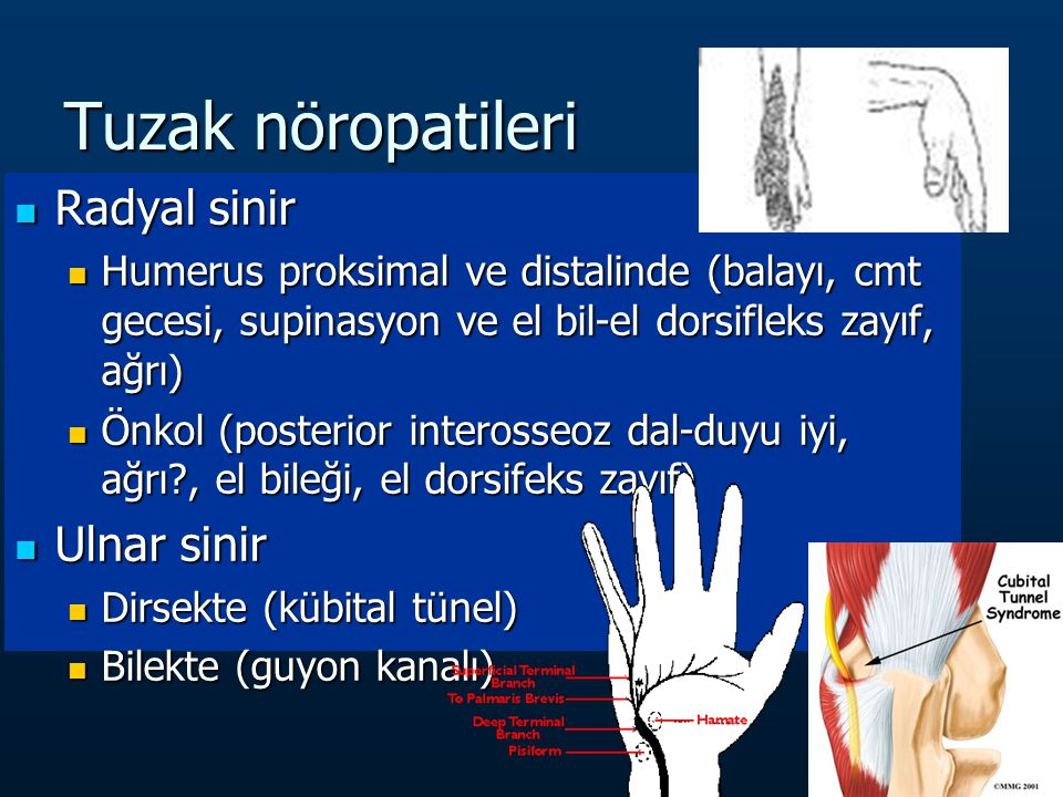 Tuzak nöropatileri Radyal sinir Ulnar sinir