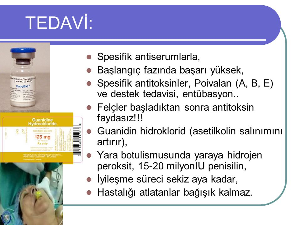 TEDAVİ: Spesifik antiserumlarla, Başlangıç fazında başarı yüksek,