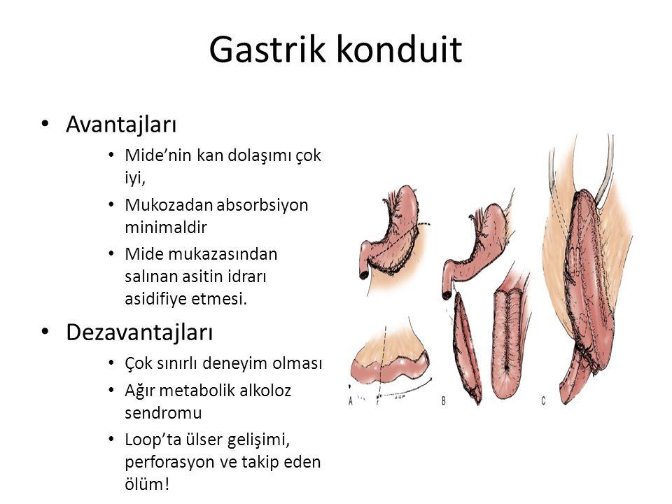 Gastrik konduit Avantajları Dezavantajları