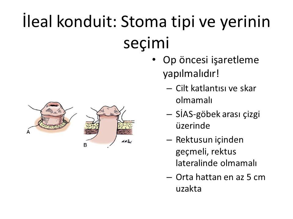 İleal konduit: Stoma tipi ve yerinin seçimi