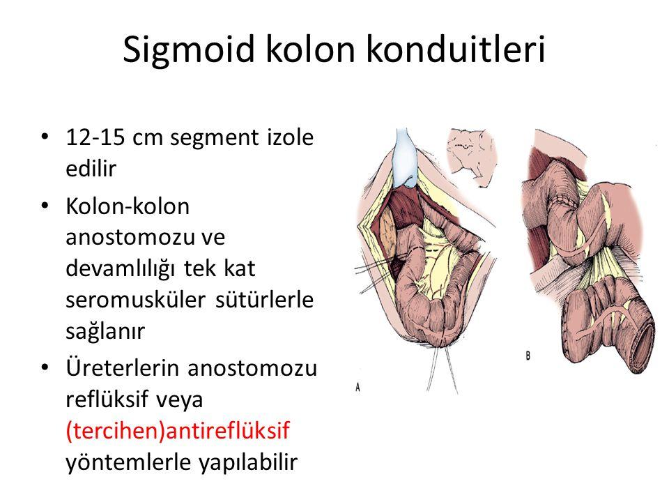Sigmoid kolon konduitleri