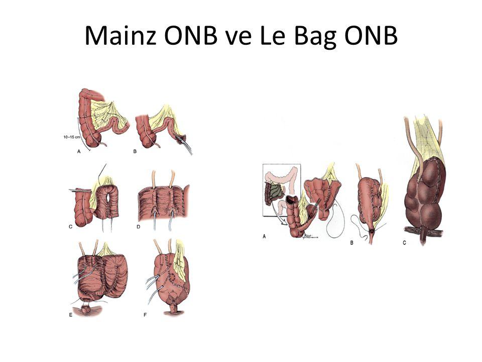 Mainz ONB ve Le Bag ONB