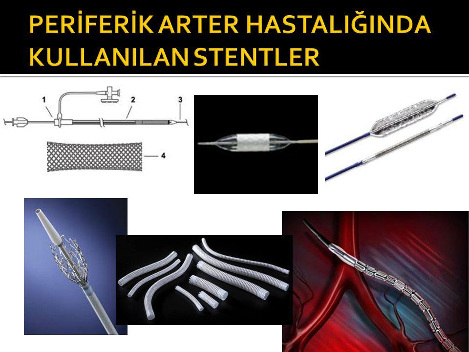 PERİFERİK ARTER HASTALIĞINDA KULLANILAN STENTLER