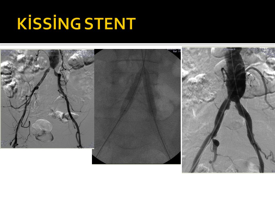 KİSSİNG STENT