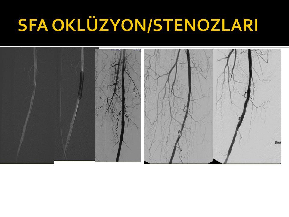 SFA OKLÜZYON/STENOZLARI