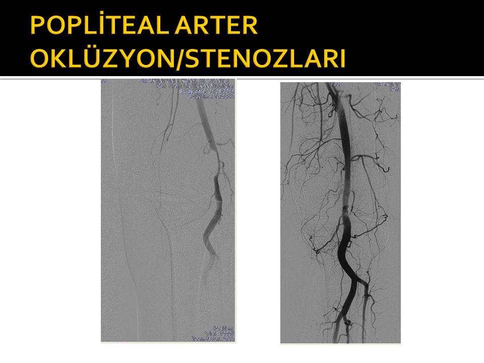 POPLİTEAL ARTER OKLÜZYON/STENOZLARI