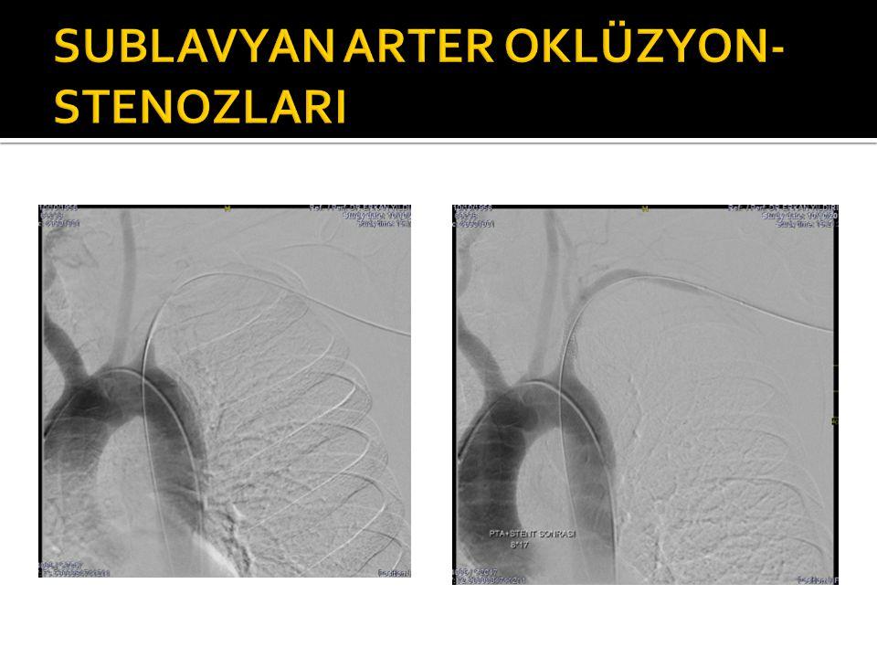 SUBLAVYAN ARTER OKLÜZYON-STENOZLARI