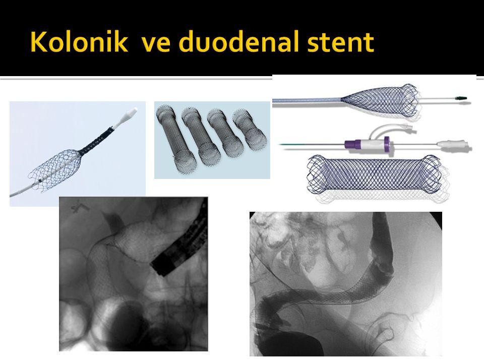 Kolonik ve duodenal stent
