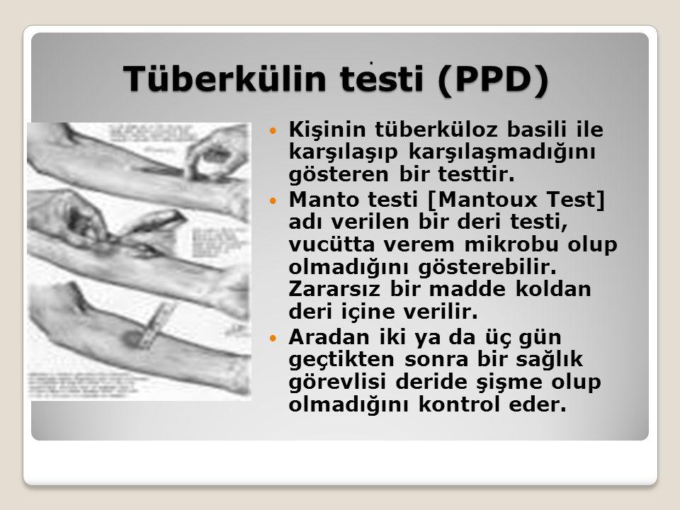 Tüberkülin testi (PPD)