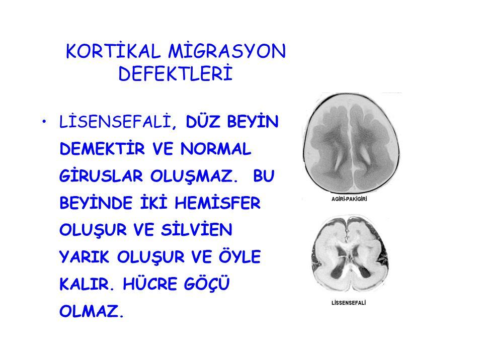KORTİKAL MİGRASYON DEFEKTLERİ