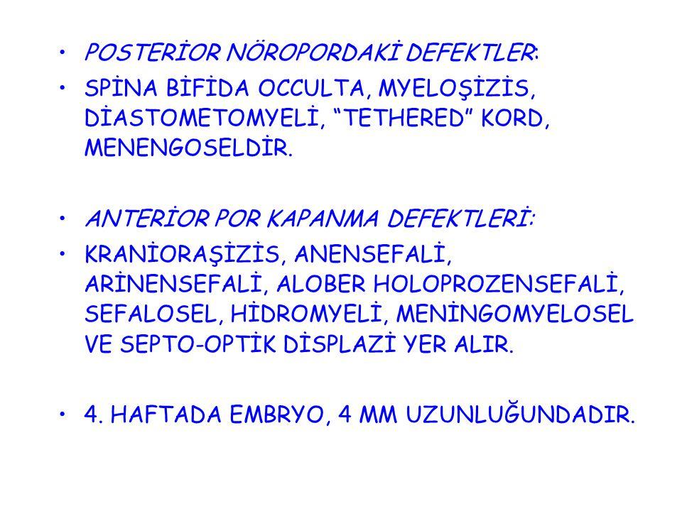 POSTERİOR NÖROPORDAKİ DEFEKTLER: