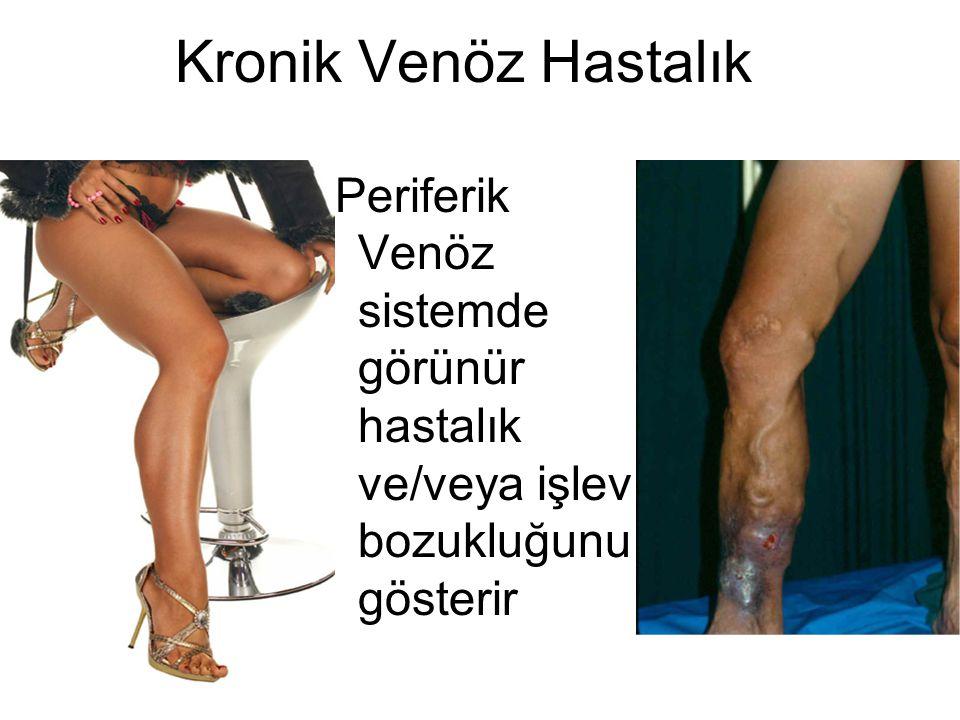 Kronik Venöz Hastalık Periferik Venöz sistemde görünür hastalık ve/veya işlev bozukluğunu gösterir.