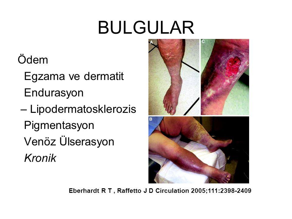 BULGULAR Ödem Egzama ve dermatit Endurasyon – Lipodermatosklerozis