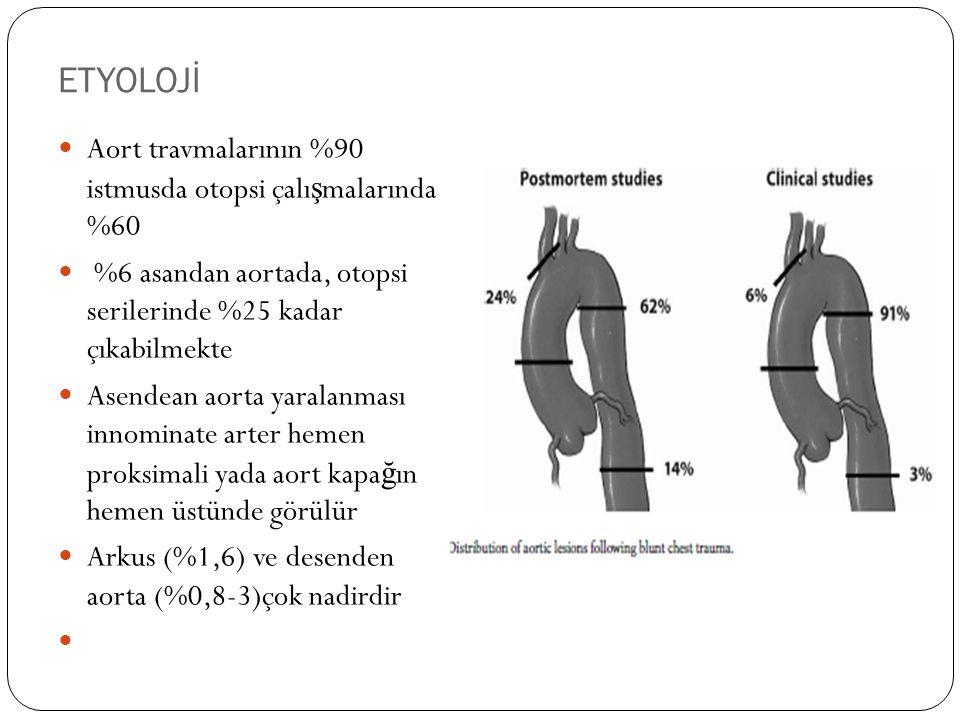ETYOLOJİ Aort travmalarının %90 istmusda otopsi çalışmalarında %60