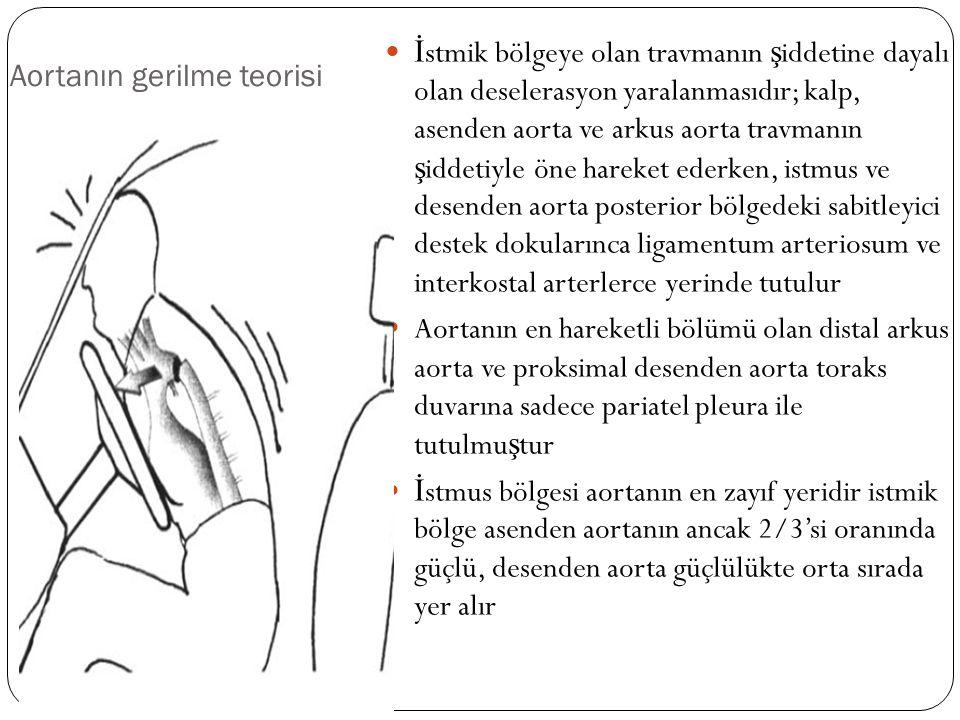 Aortanın gerilme teorisi