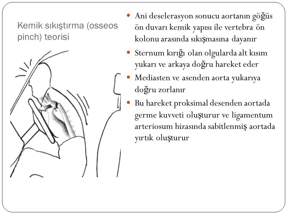 Kemik sıkıştırma (osseos pinch) teorisi