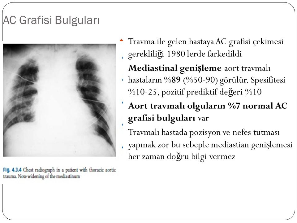 AC Grafisi Bulguları Travma ile gelen hastaya AC grafisi çekimesi gerekliliği 1980 lerde farkedildi.