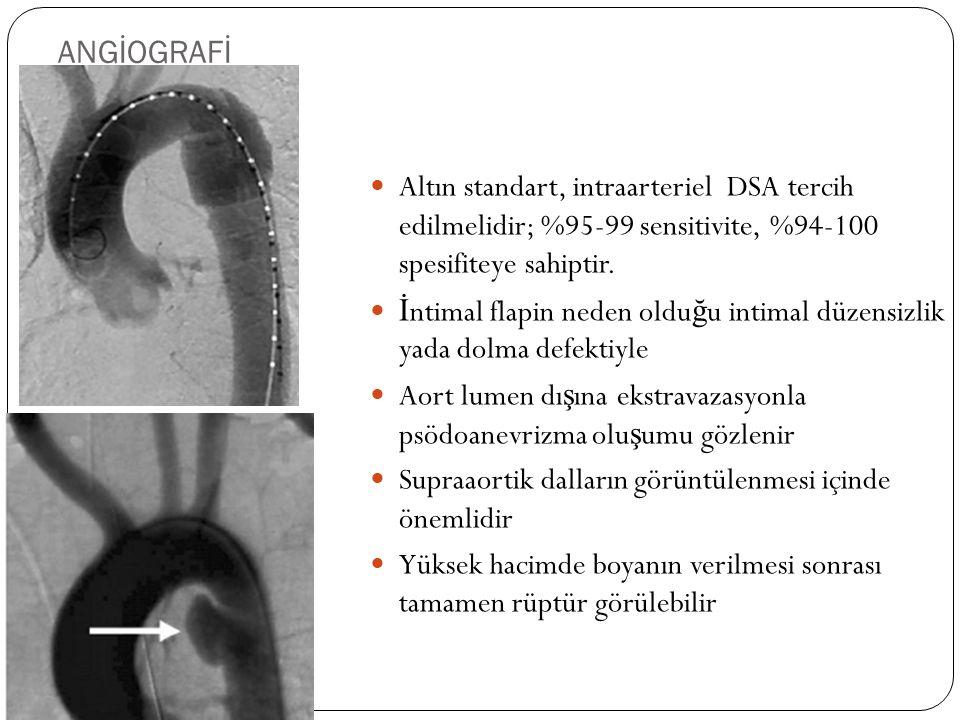 ANGİOGRAFİ Altın standart, intraarteriel DSA tercih edilmelidir; %95-99 sensitivite, %94-100 spesifiteye sahiptir.