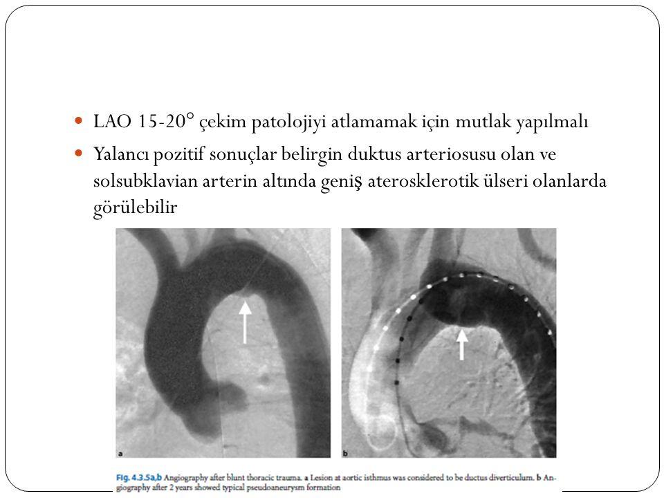 LAO 15-20° çekim patolojiyi atlamamak için mutlak yapılmalı
