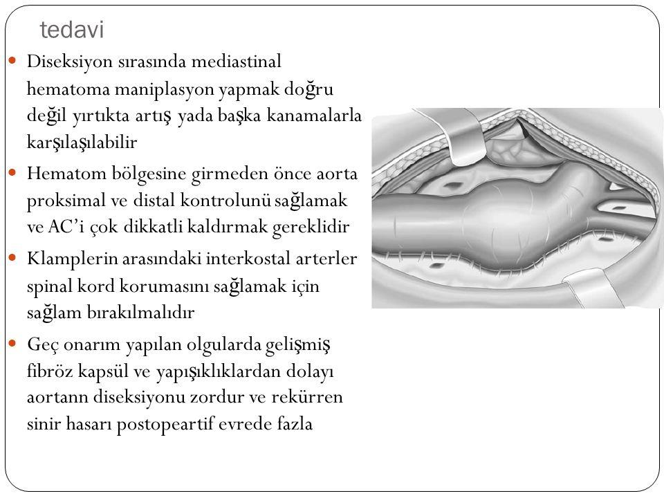 tedavi Diseksiyon sırasında mediastinal hematoma maniplasyon yapmak doğru değil yırtıkta artış yada başka kanamalarla karşılaşılabilir.