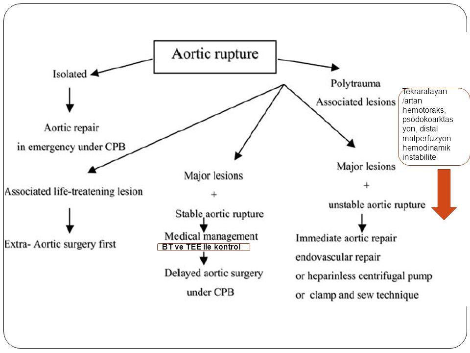Tekraralayan /artan hemotoraks, psödokoarktasyon, distal malperfüzyon