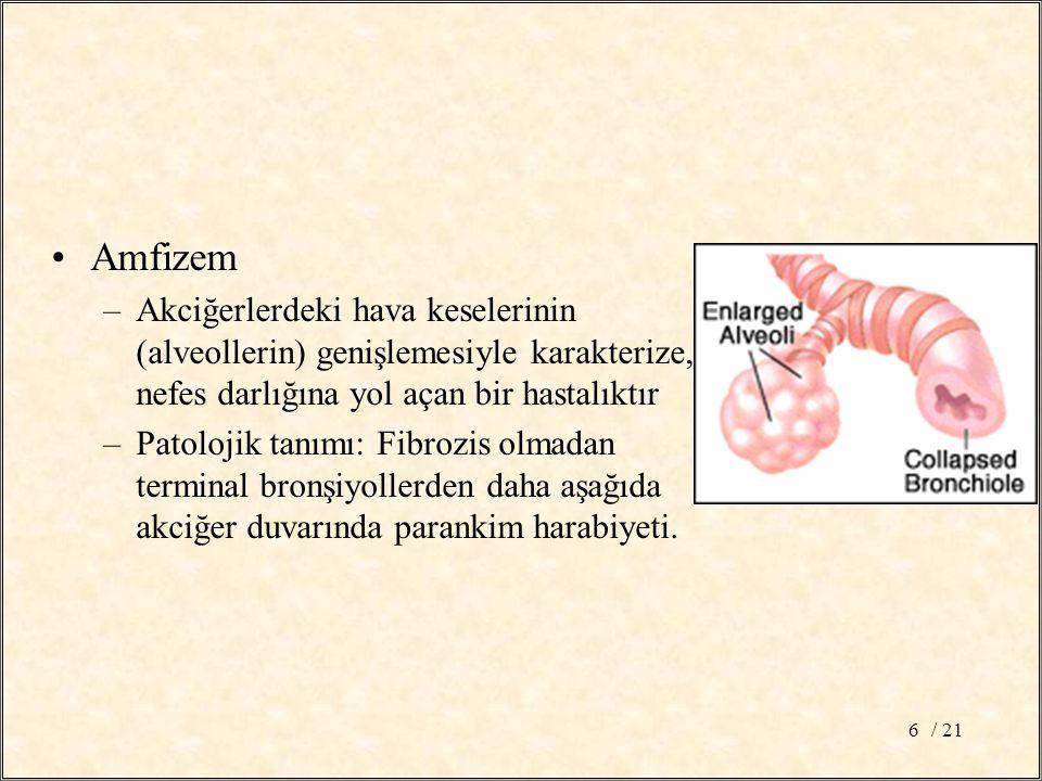 Amfizem Akciğerlerdeki hava keselerinin (alveollerin) genişlemesiyle karakterize, nefes darlığına yol açan bir hastalıktır.