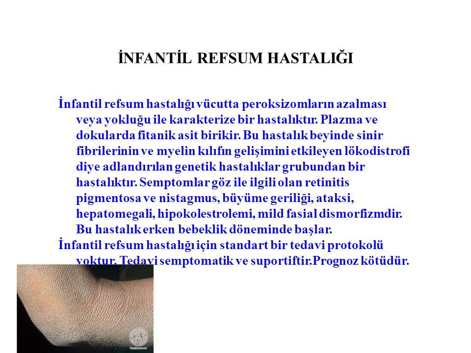 İNFANTİL REFSUM HASTALIĞI