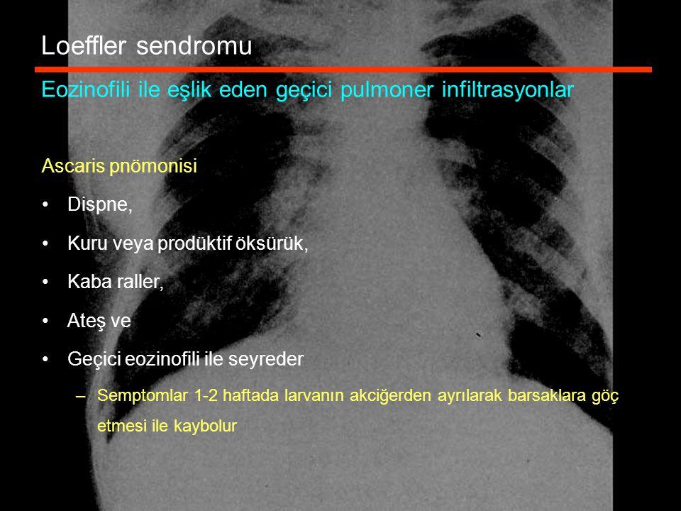 Loeffler sendromu Eozinofili ile eşlik eden geçici pulmoner infiltrasyonlar