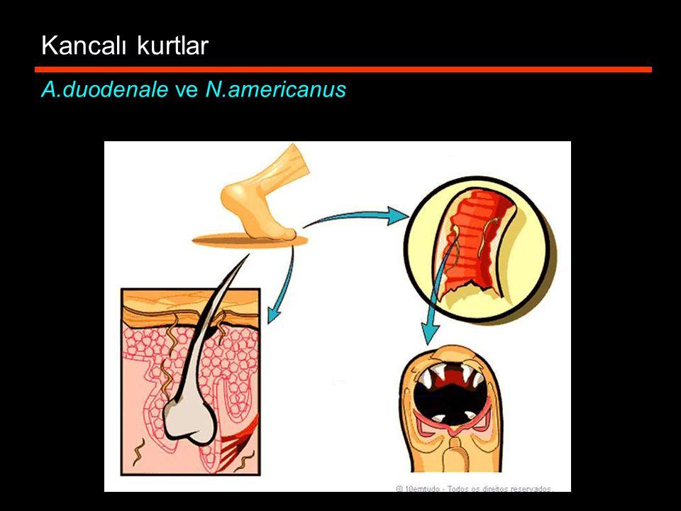 Kancalı kurtlar A.duodenale ve N.americanus
