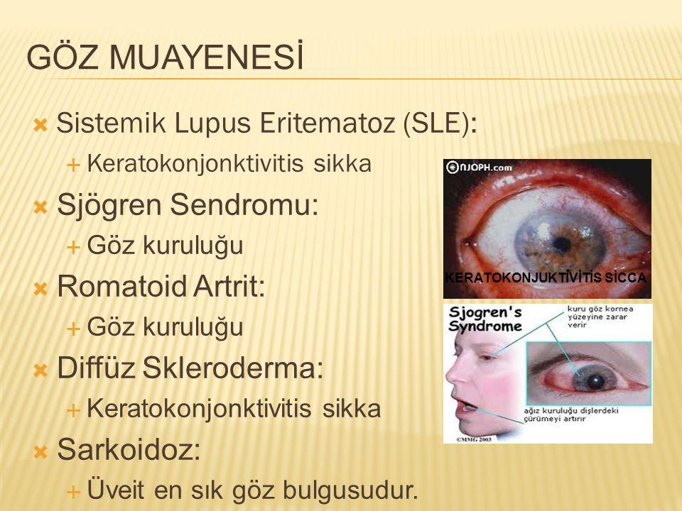 GÖZ MUAYENESİ Sistemik Lupus Eritematoz (SLE): Sjögren Sendromu: