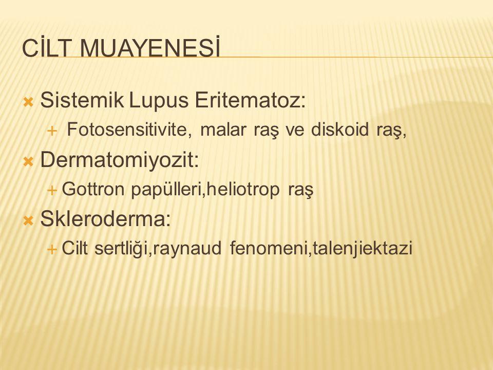 CİLT MUAYENESİ Sistemik Lupus Eritematoz: Dermatomiyozit: Skleroderma: