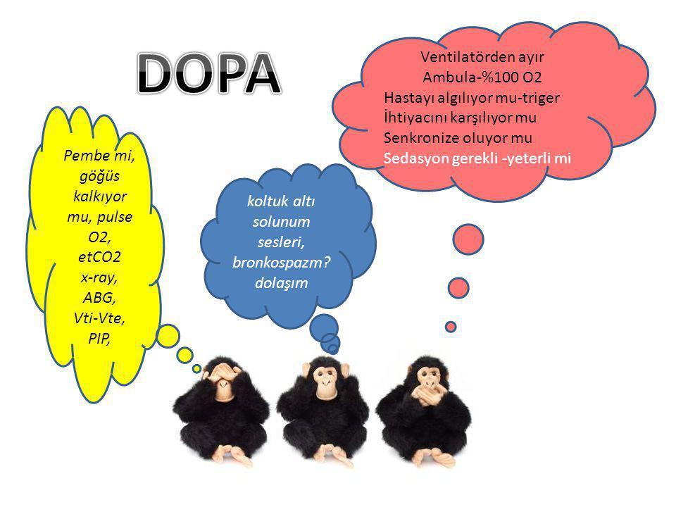 DOPA Ventilatörden ayır Ambula-%100 O2 Hastayı algılıyor mu-triger
