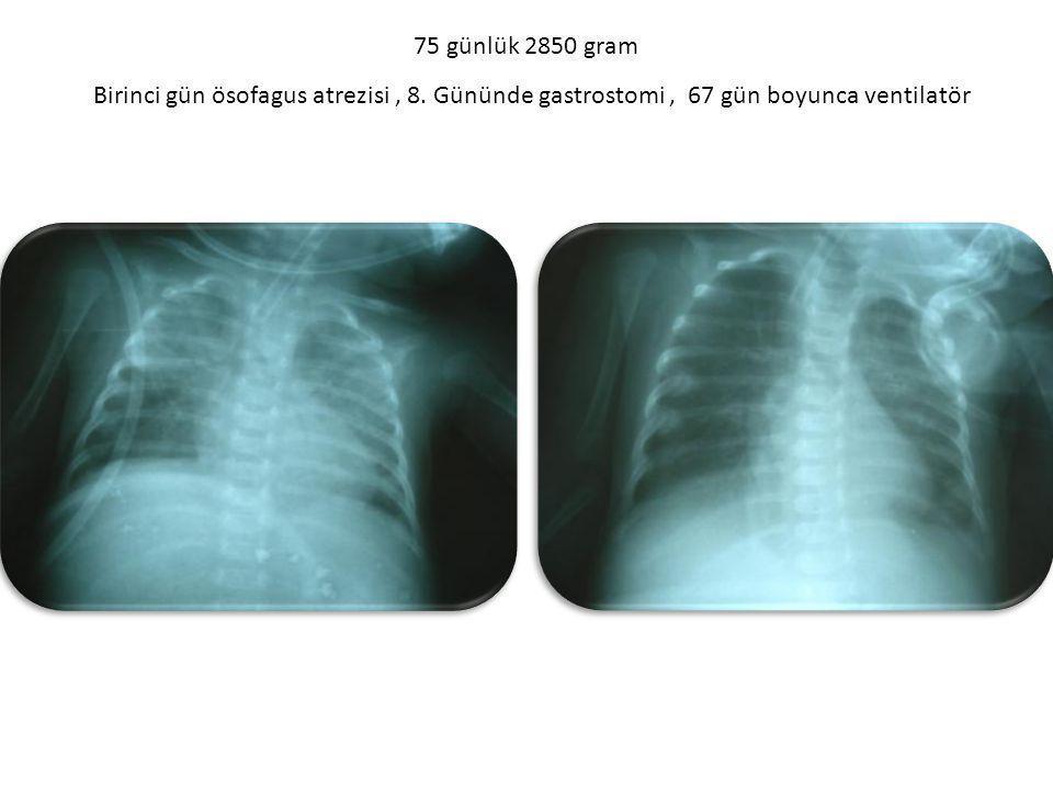 75 günlük 2850 gram Birinci gün ösofagus atrezisi , 8. Gününde gastrostomi , 67 gün boyunca ventilatör.