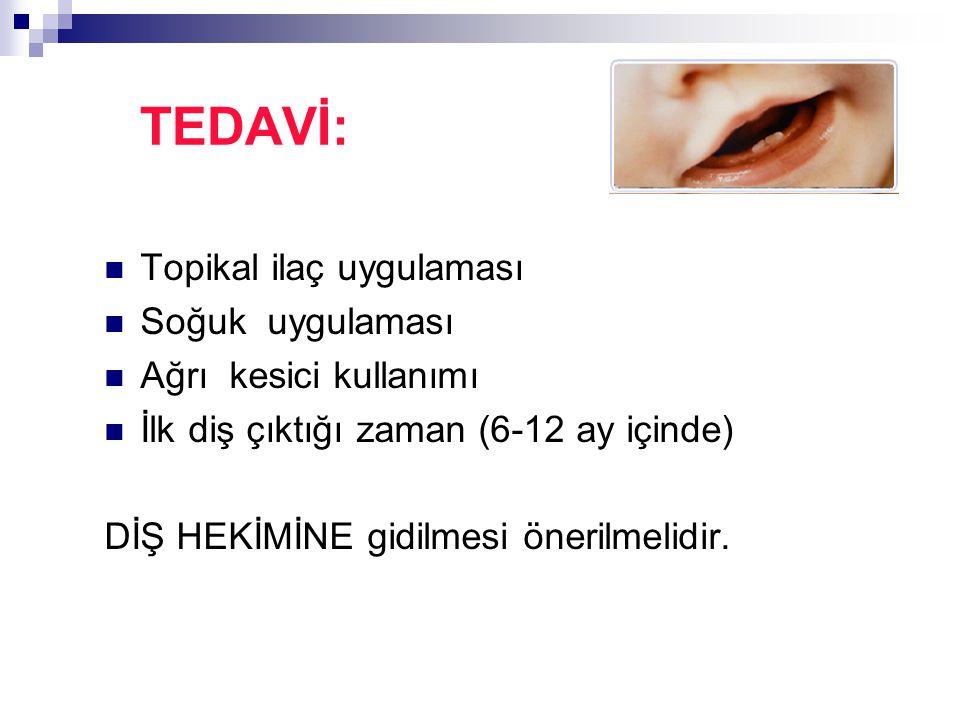 TEDAVİ: Topikal ilaç uygulaması Soğuk uygulaması Ağrı kesici kullanımı