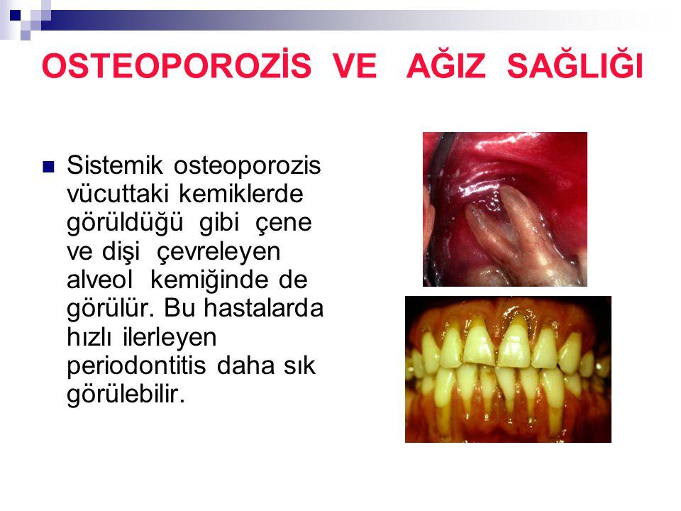 OSTEOPOROZİS VE AĞIZ SAĞLIĞI