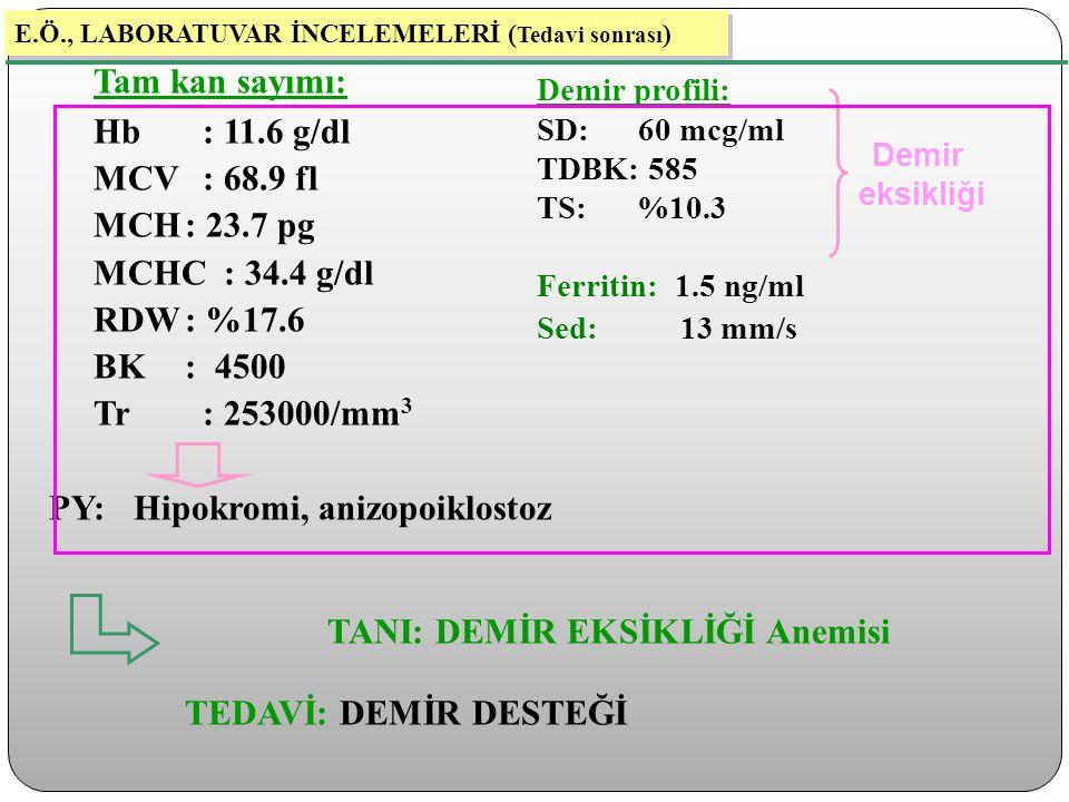 Tam kan sayımı: Hb : 11.6 g/dl MCV : 68.9 fl MCH : 23.7 pg