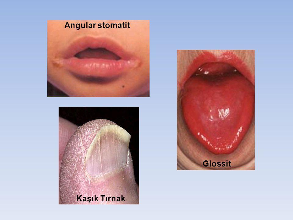 Angular stomatit Glossit Kaşık Tırnak