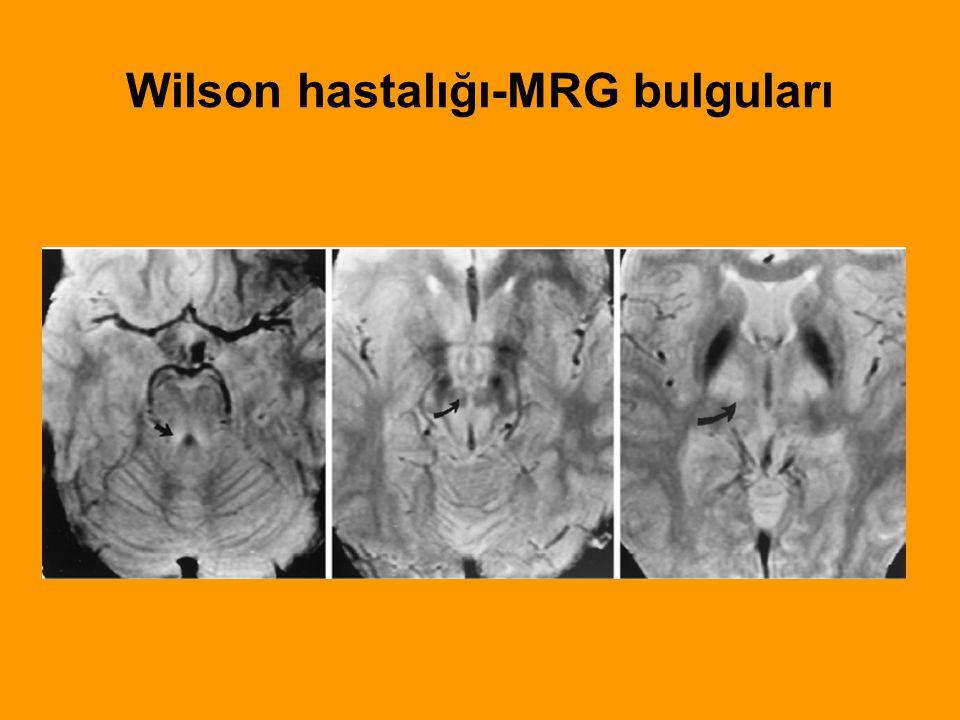 Wilson hastalığı-MRG bulguları