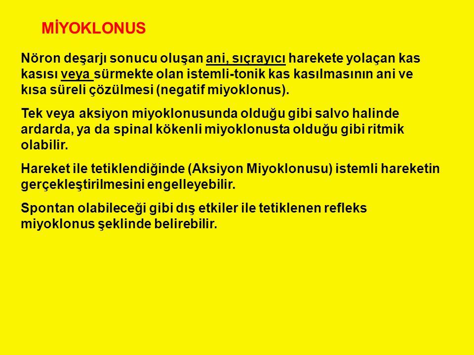 MİYOKLONUS