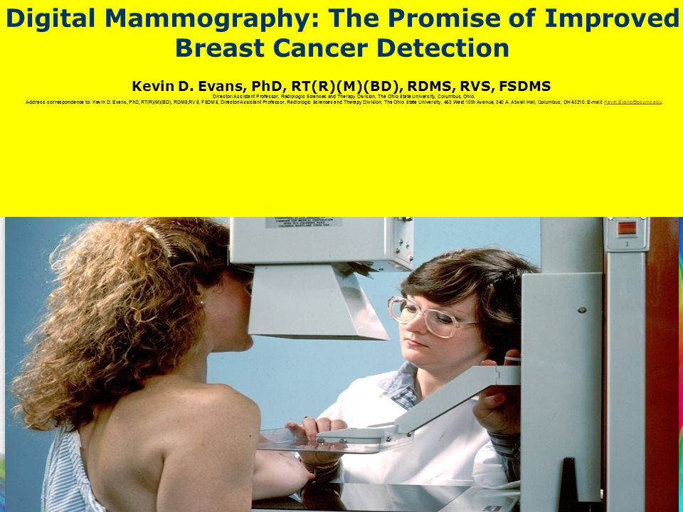 Digital Mammography: The Promise of Improved Breast Cancer Detection
