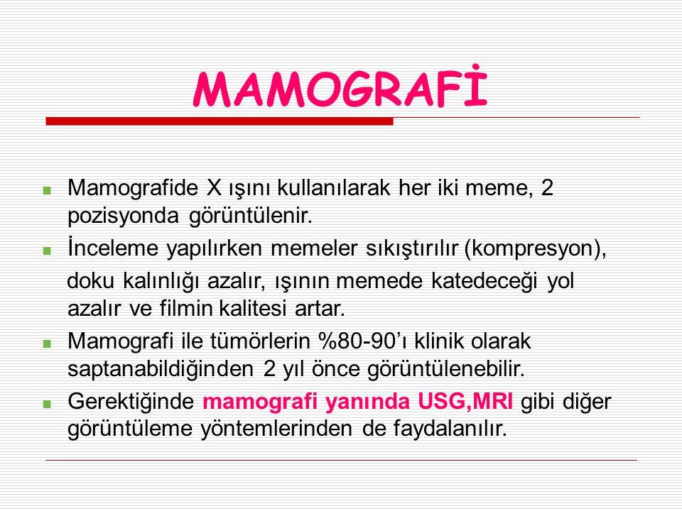 MAMOGRAFİ Mamografide X ışını kullanılarak her iki meme, 2 pozisyonda görüntülenir. İnceleme yapılırken memeler sıkıştırılır (kompresyon),