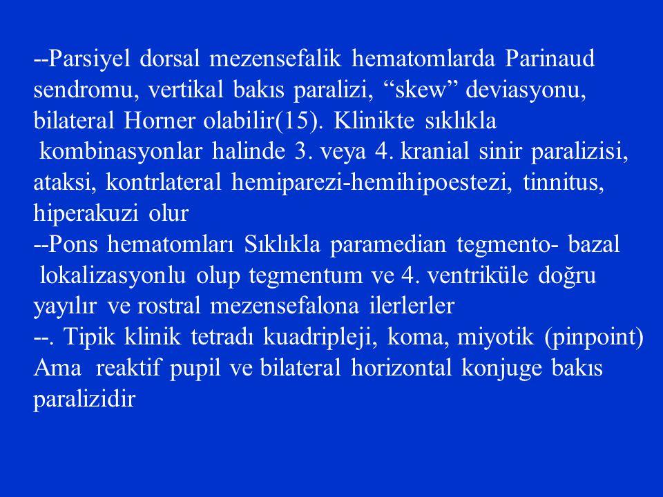 --Parsiyel dorsal mezensefalik hematomlarda Parinaud