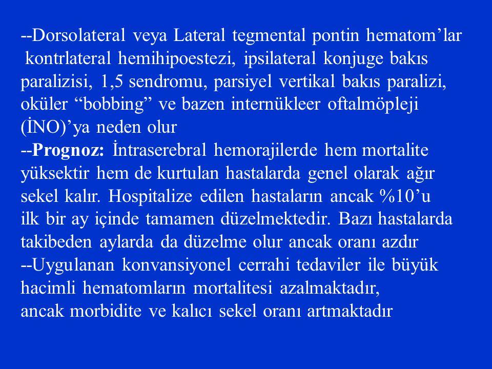 --Dorsolateral veya Lateral tegmental pontin hematom'lar