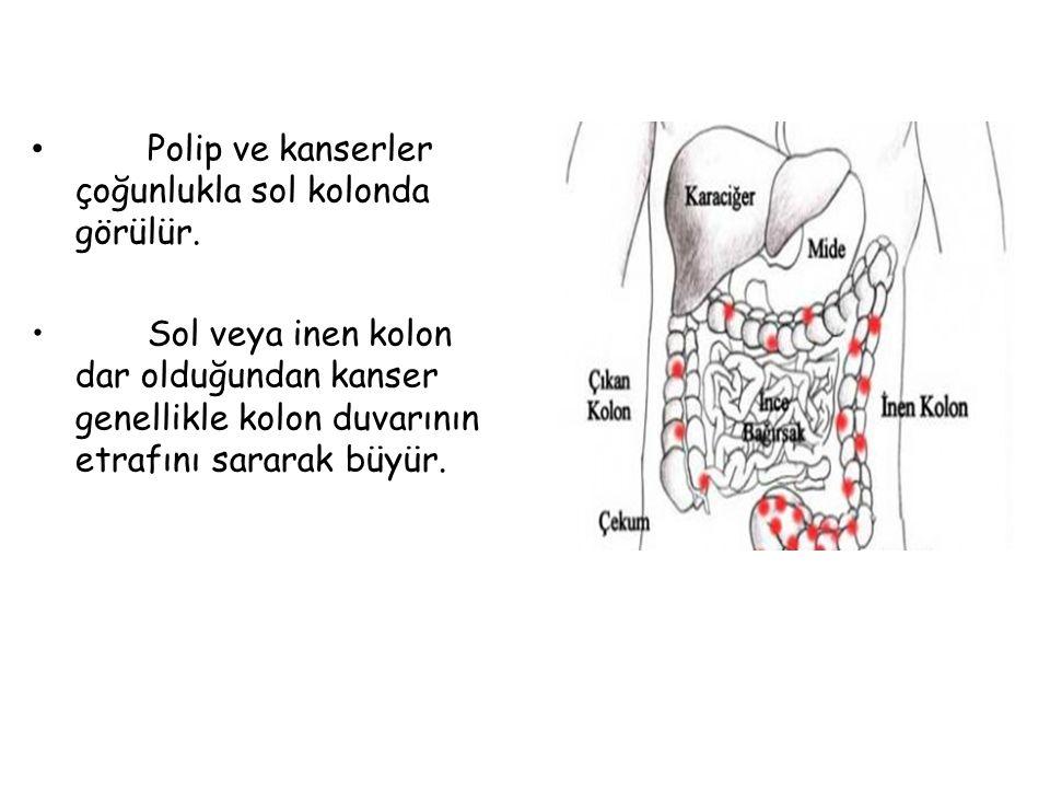 Polip ve kanserler çoğunlukla sol kolonda görülür.