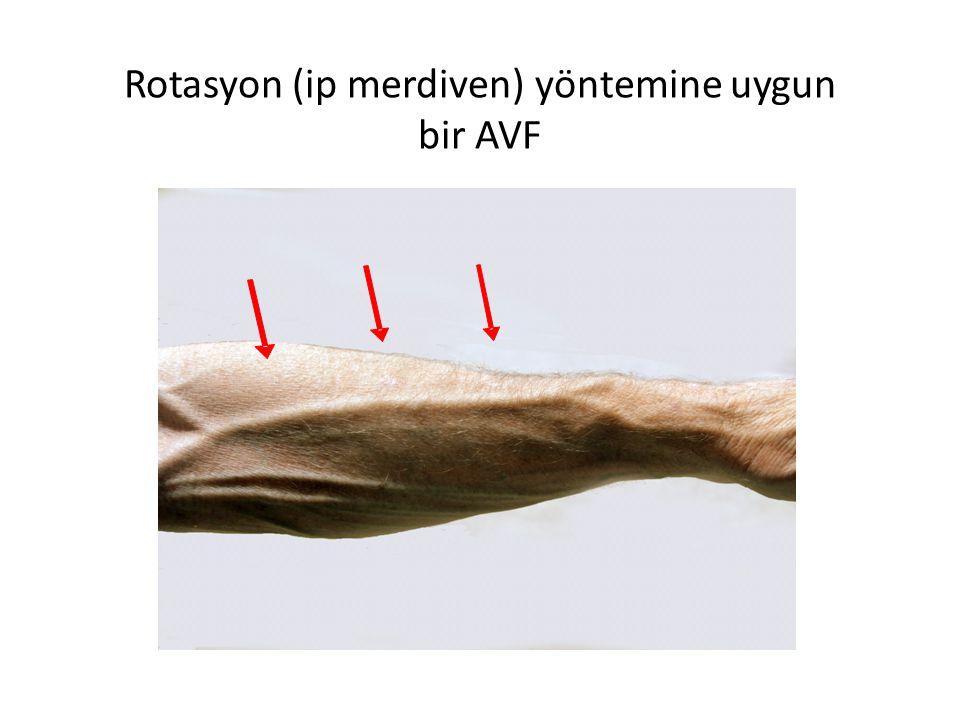Rotasyon (ip merdiven) yöntemine uygun bir AVF