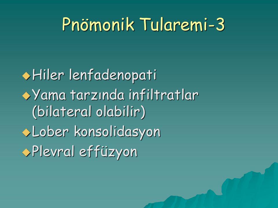 Pnömonik Tularemi-3 Hiler lenfadenopati