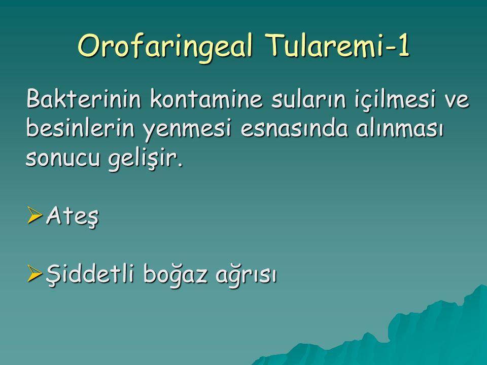 Orofaringeal Tularemi-1